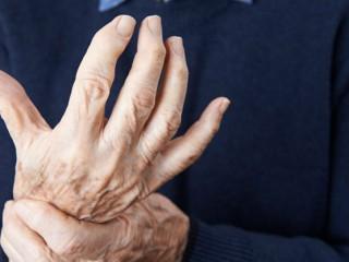 arthrose im finger
